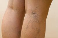 Народные рецепты от варикоза на ногах