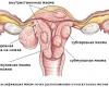 Низкий уровень эстрогена улучшает эффективность препаратов, лечащих рак матки