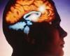 Рак мозга можно диагностировать за 30 минут