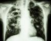 Ученые нашли белок, который может замедлить смертельную болезнь легких