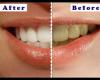Что вы должны знать об отбеливании зубов в домашних условиях под наблюдением стоматолога