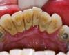 Удаление зубного камня: цена вполне доступная