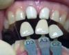 Цирконий в стоматологии широко применяется сегодня