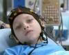 Лечение эпилепсии Израиль