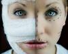 Восемь мифов и фактов о пластической хирургии