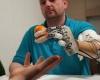 Первый сенсорный протез руки позволяет человеку ощущать его, как настоящую руку