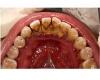 Как в домашних условиях избавиться от зубного камня?