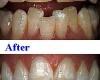 Эстетическая стоматология для идеальных жемчужно-белых зубов